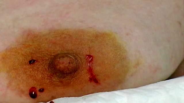 BDSM, Bondage, Electrostimulation, Gagging, Mature, Mom, Pain, Tits torture